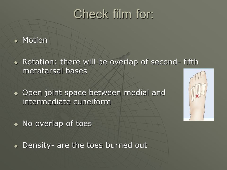 Check film for:  Motion  Rotation: there will be overlap of second- fifth metatarsal bases  Open joint space between medial and intermediate cuneiform  No overlap of toes  Density- are the toes burned out