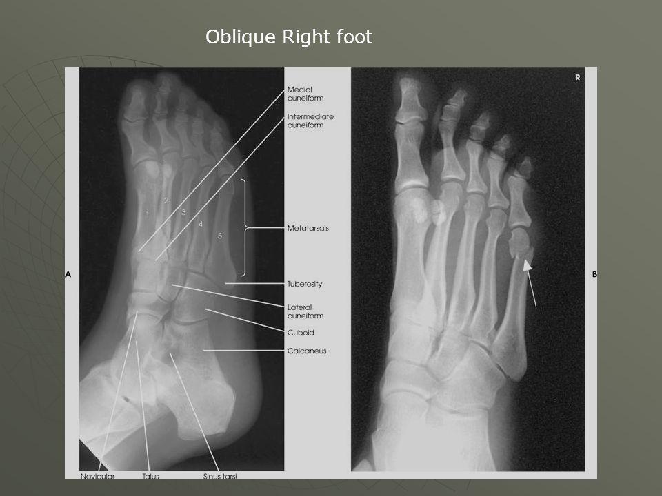 Oblique Right foot