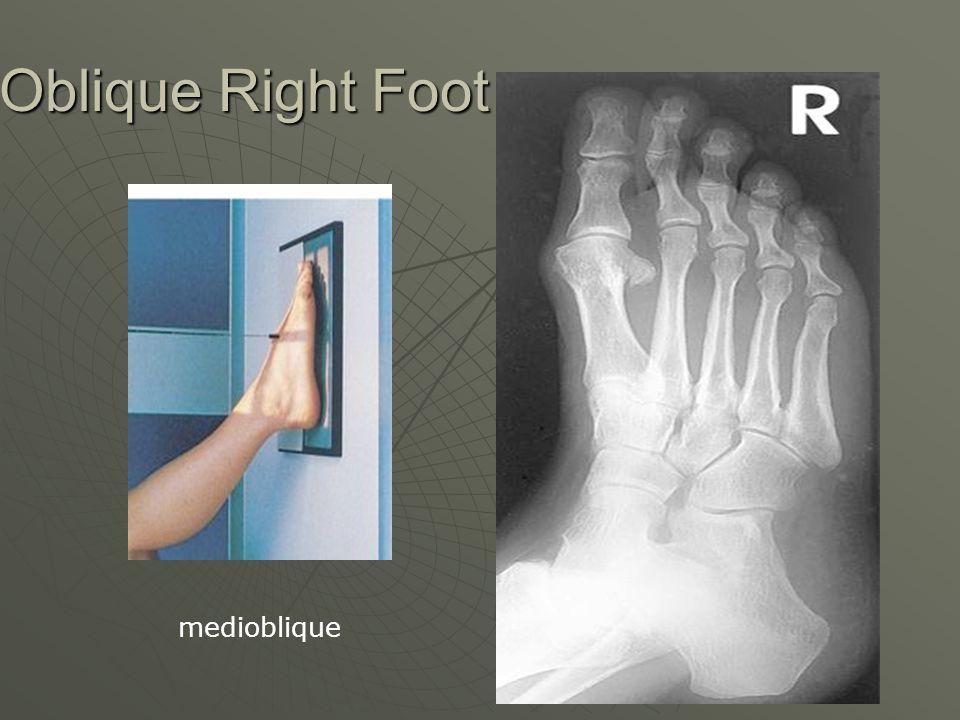 Oblique Right Foot medioblique