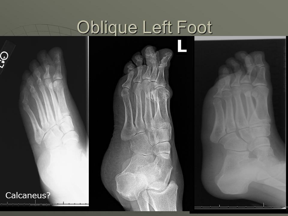 Oblique Left Foot Calcaneus?