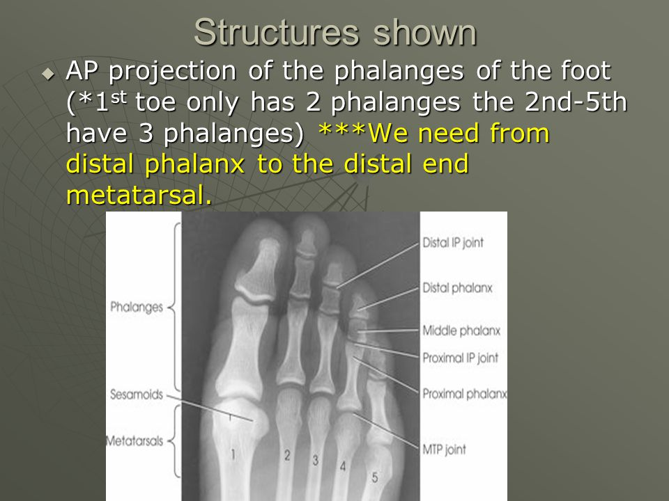 Structures shown  AP projection of the phalanges of the foot (*1 st toe only has 2 phalanges the 2nd-5th have 3 phalanges) ***We need from distal pha