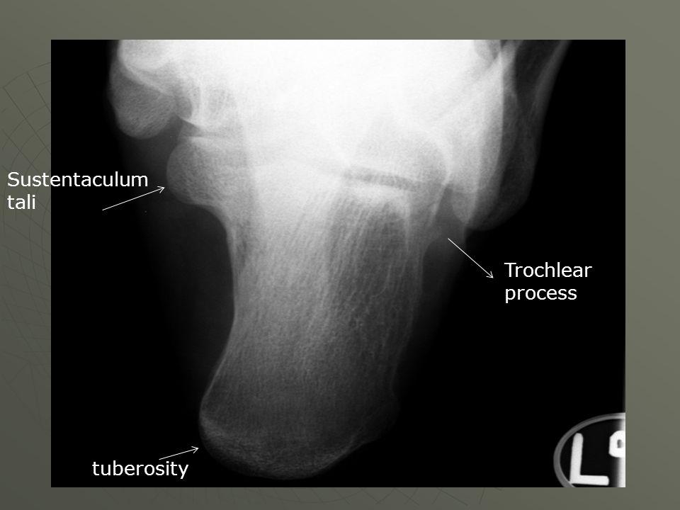 Sustentaculum tali tuberosity Trochlear process