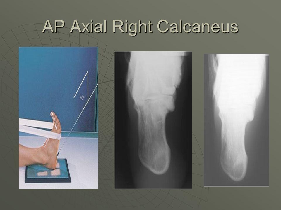 AP Axial Right Calcaneus