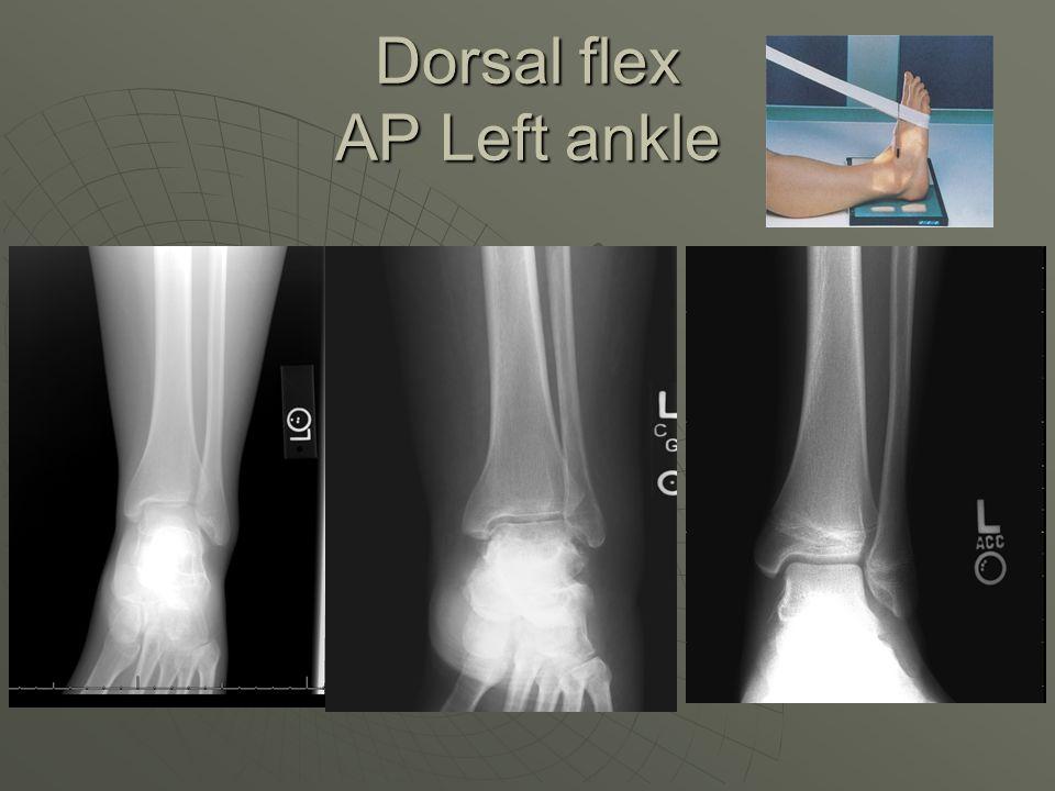 Dorsal flex AP Left ankle