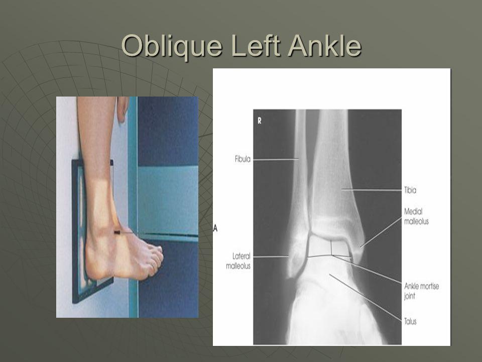 Oblique Left Ankle