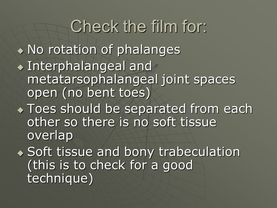 Check the film for:  No rotation of phalanges  Interphalangeal and metatarsophalangeal joint spaces open (no bent toes)  Toes should be separated f