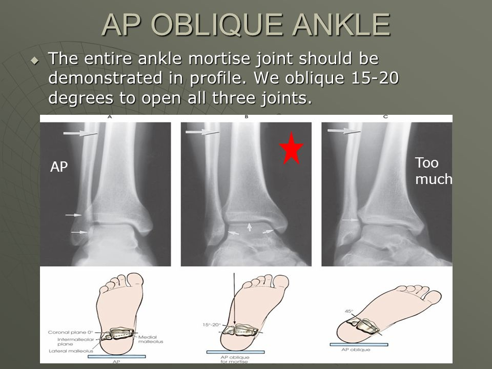 AP OBLIQUE ANKLE  The entire ankle mortise joint should be demonstrated in profile.