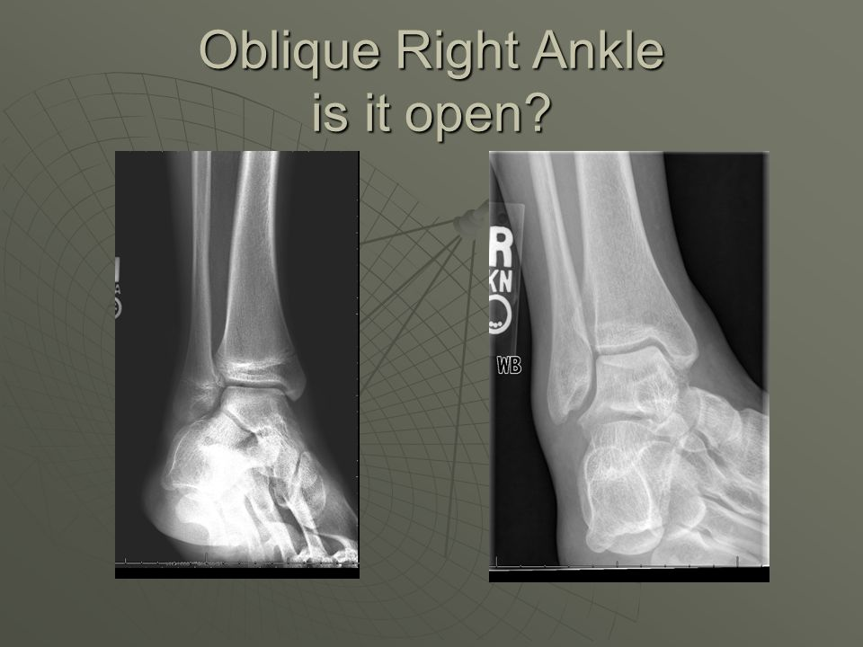 Oblique Right Ankle is it open?