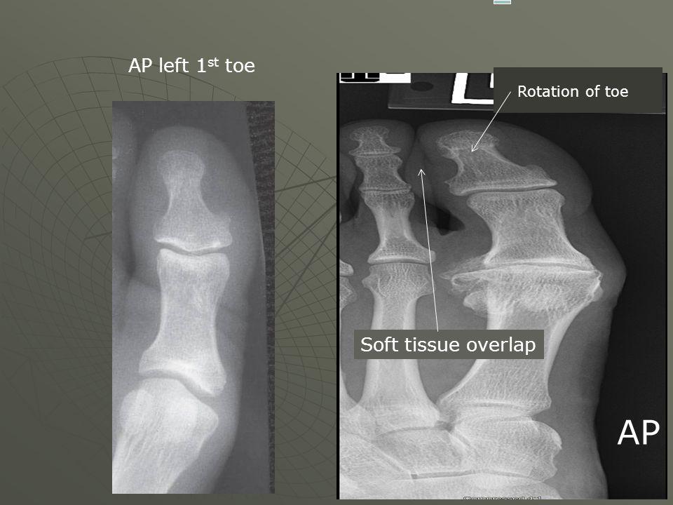 AP Rotation of toe Soft tissue overlap AP left 1 st toe