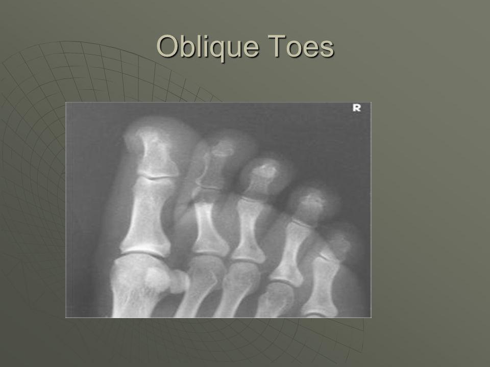Oblique Toes