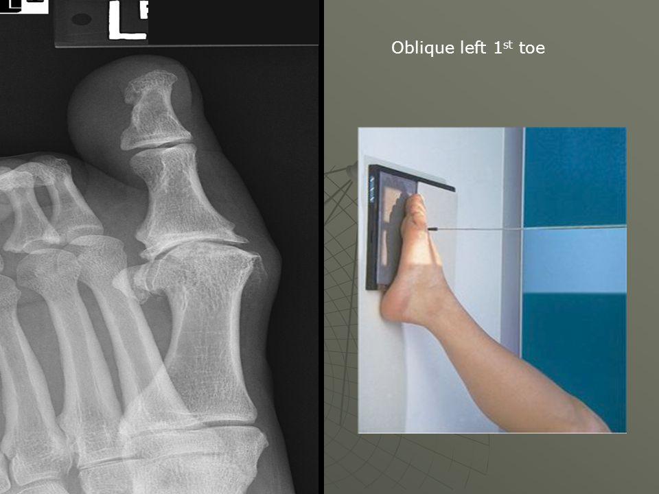 Oblique left 1 st toe