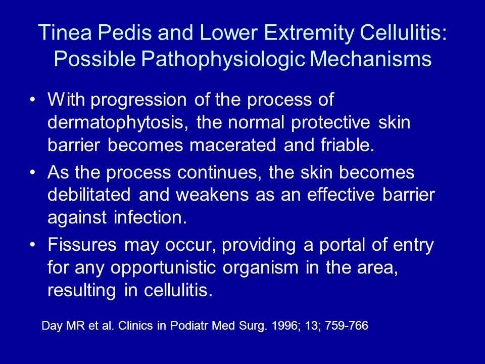 Tinea Pedis and Lower Extremity Cellulitis: Possible Pathophysiologic Mechanisms With progression of the process of dermatophytosis, the normal protective skin barrier becomes macerated and friable.