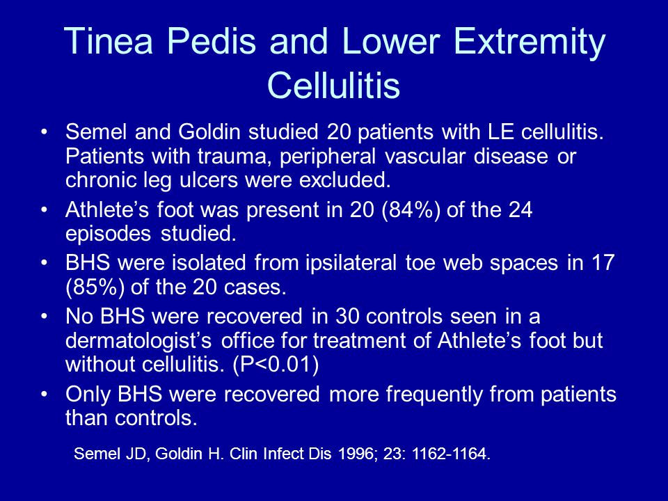 Tinea Pedis and Lower Extremity Cellulitis Semel and Goldin studied 20 patients with LE cellulitis.