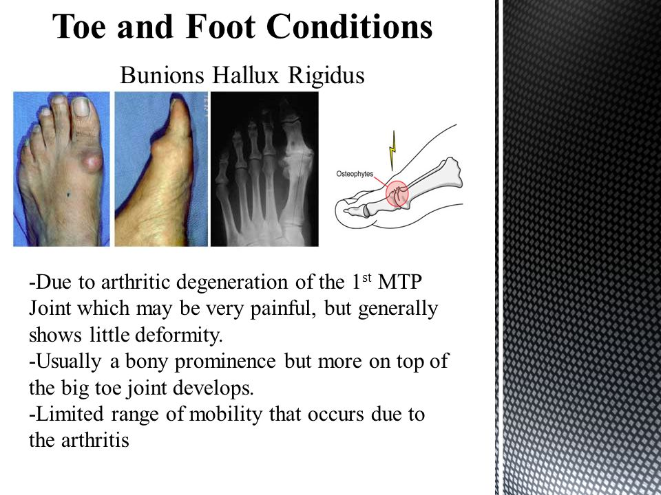 Bunions Hallux Rigidus -Due to arthritic degeneration of the 1 st MTP Joint which may be very painful, but generally shows little deformity.