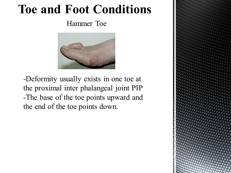 Hammer Toe -Deformity usually exists in one toe at the proximal inter phalangeal joint PIP -The base of the toe points upward and the end of the toe p