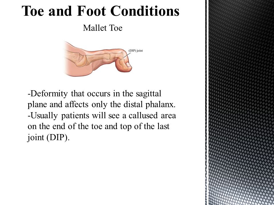 Mallet Toe -Deformity that occurs in the sagittal plane and affects only the distal phalanx.