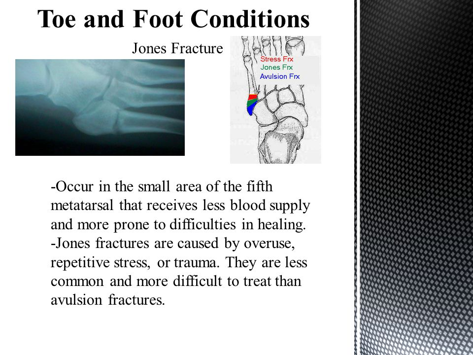 Jones Fracture -Occur in the small area of the fifth metatarsal that receives less blood supply and more prone to difficulties in healing. -Jones frac