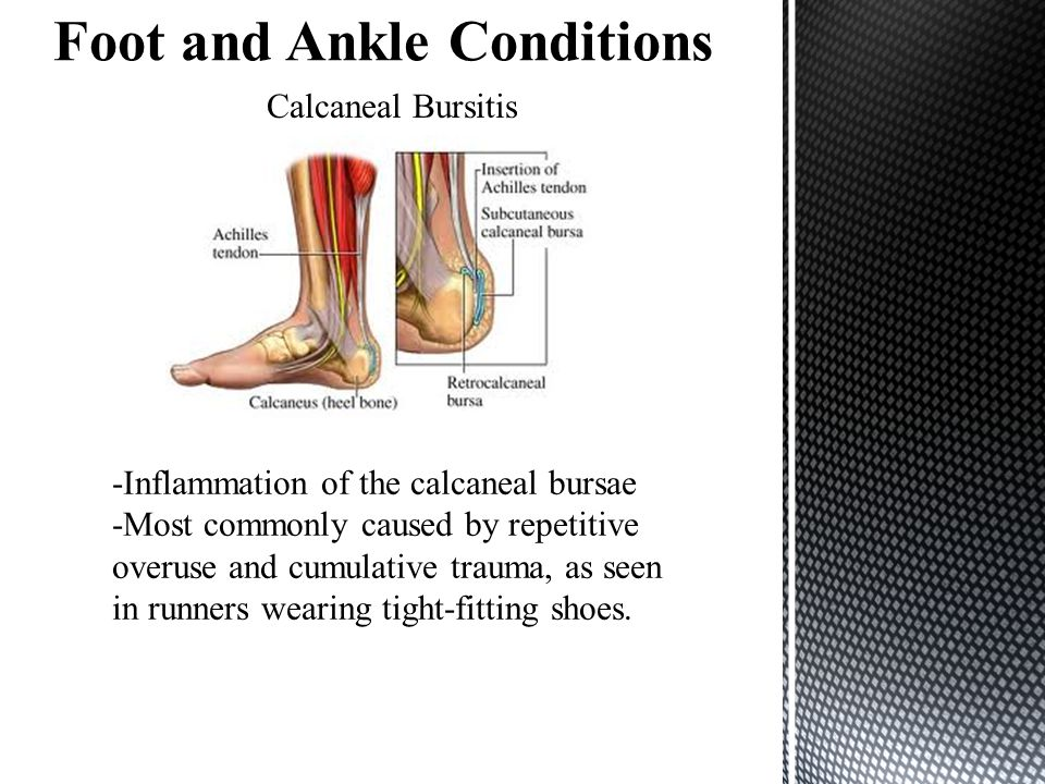 Calcaneal Bursitis -Inflammation of the calcaneal bursae -Most commonly caused by repetitive overuse and cumulative trauma, as seen in runners wearing tight-fitting shoes.