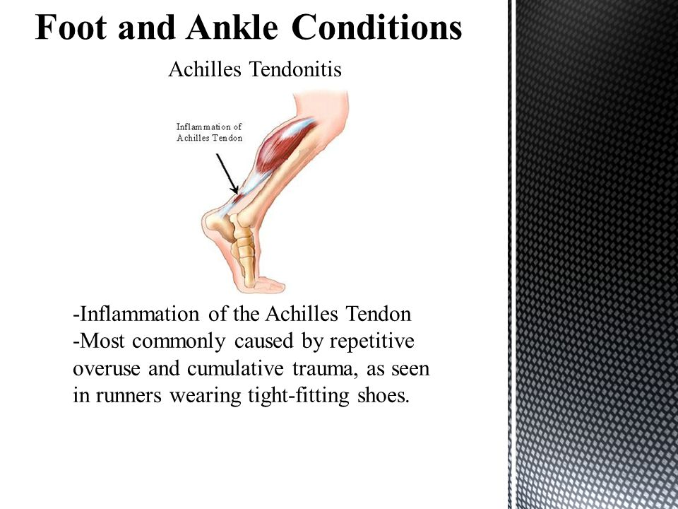 Achilles Tendonitis -Inflammation of the Achilles Tendon -Most commonly caused by repetitive overuse and cumulative trauma, as seen in runners wearing tight-fitting shoes.