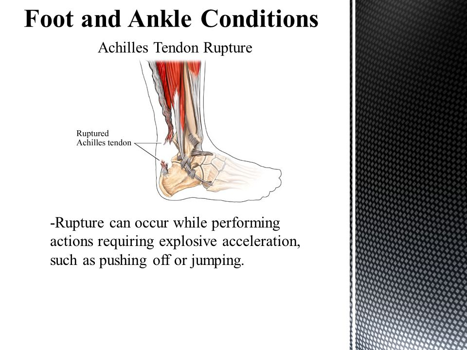 Achilles Tendon Rupture -Rupture can occur while performing actions requiring explosive acceleration, such as pushing off or jumping.