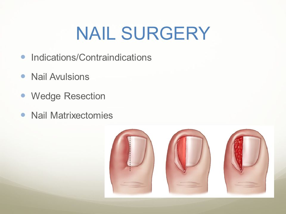 NAIL SURGERY Indications/Contraindications Nail Avulsions Wedge Resection Nail Matrixectomies