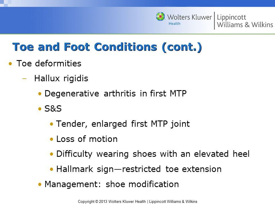 Copyright © 2013 Wolters Kluwer Health | Lippincott Williams & Wilkins Toe and Foot Conditions (cont.) Toe deformities –Hallux rigidis Degenerative ar