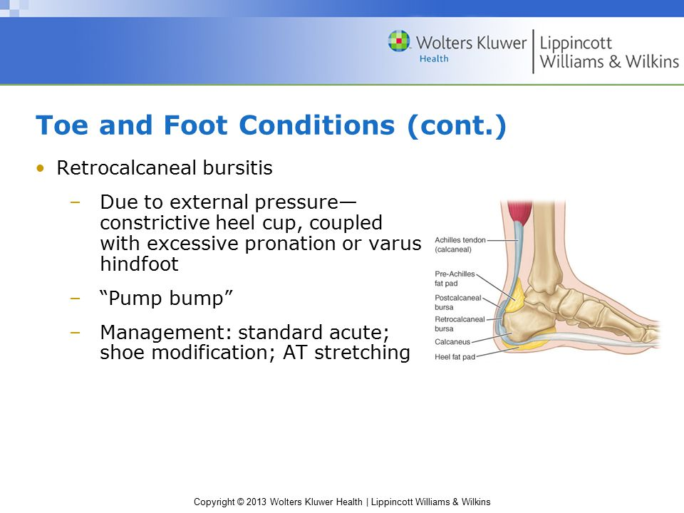 Copyright © 2013 Wolters Kluwer Health | Lippincott Williams & Wilkins Foot Contusions Trauma to the midfoot or forefoot: need to rule out fracture and damage to extensor tendons Hindfoot—heel bruise –Thick padding of adipose tissue—does not always suffice –Stress in running, jumping, changing directions –S&S Severe pain in heel Unable to bear weight –Management: cold; heel cup or doughnut pad –Condition may persist for months