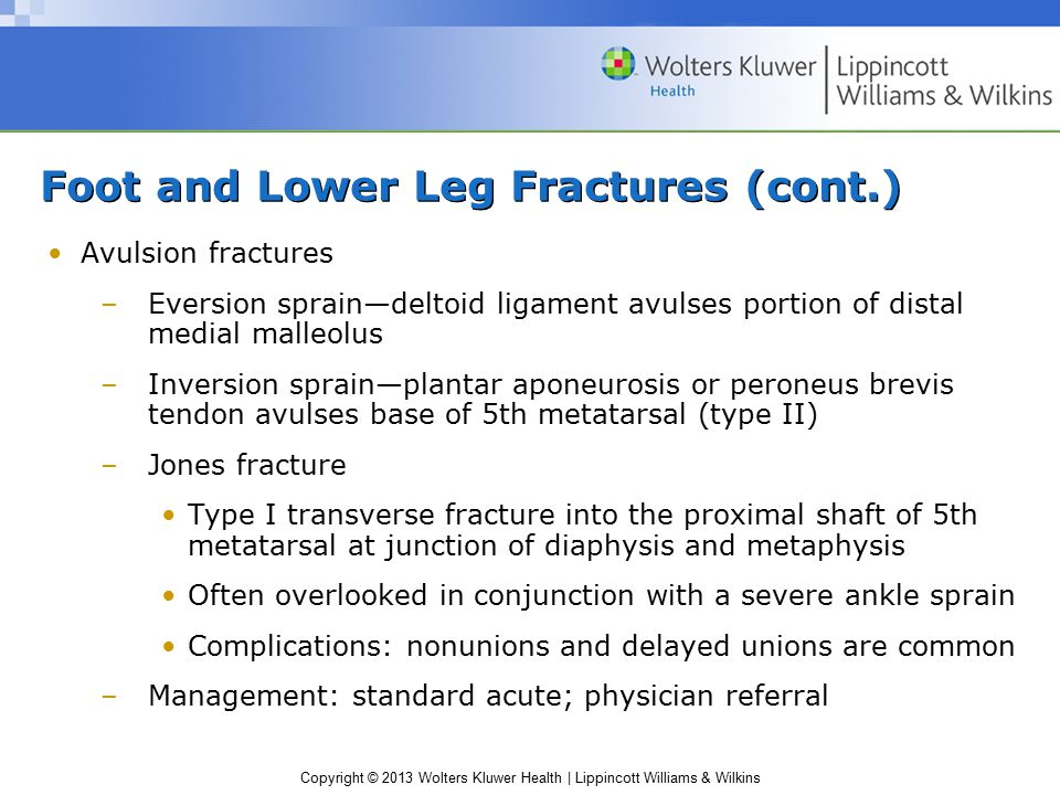Foot and Lower Leg Fractures (cont.) Avulsion fractures –Eversion sprain—deltoid ligament avulses portion of distal medial malleolus –Inversion sprain