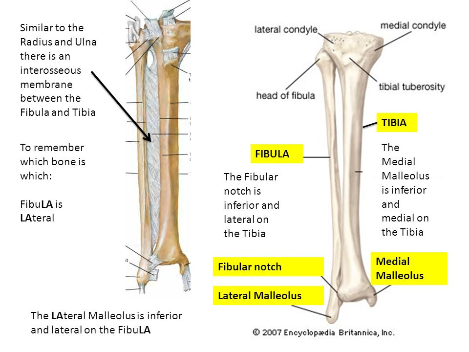 Lateral Malleolus Fibular notch Medial Malleolus The Fibular notch is inferior and lateral on the Tibia The Medial Malleolus is inferior and medial on the Tibia Similar to the Radius and Ulna there is an interosseous membrane between the Fibula and Tibia The LAteral Malleolus is inferior and lateral on the FibuLA To remember which bone is which: FibuLA is LAteral FIBULA TIBIA