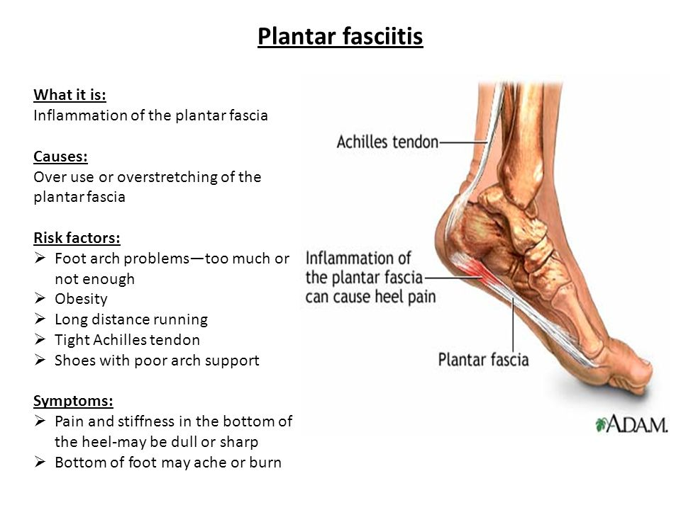 Plantar fasciitis What it is: Inflammation of the plantar fascia Causes: Over use or overstretching of the plantar fascia Risk factors:  Foot arch pr