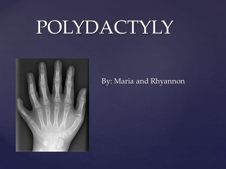 { POLYDACTYLY By: Maria and Rhyannon