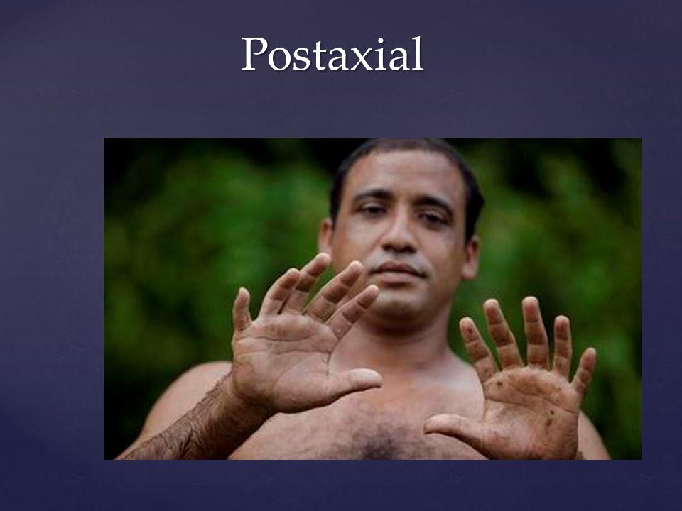 Preaxial