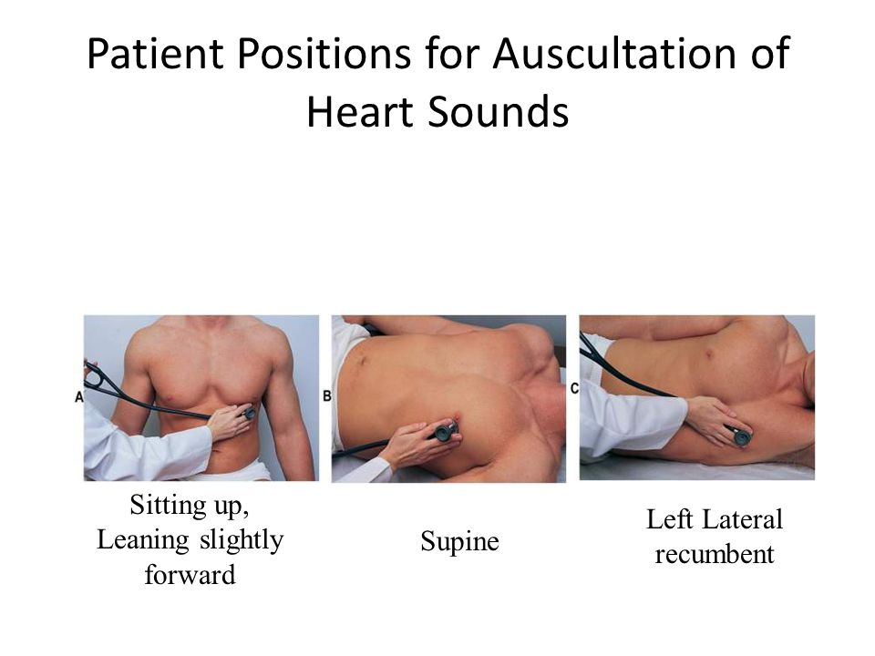 Patient Positions for Auscultation of Heart Sounds Sitting up, Leaning slightly forward Supine Left Lateral recumbent