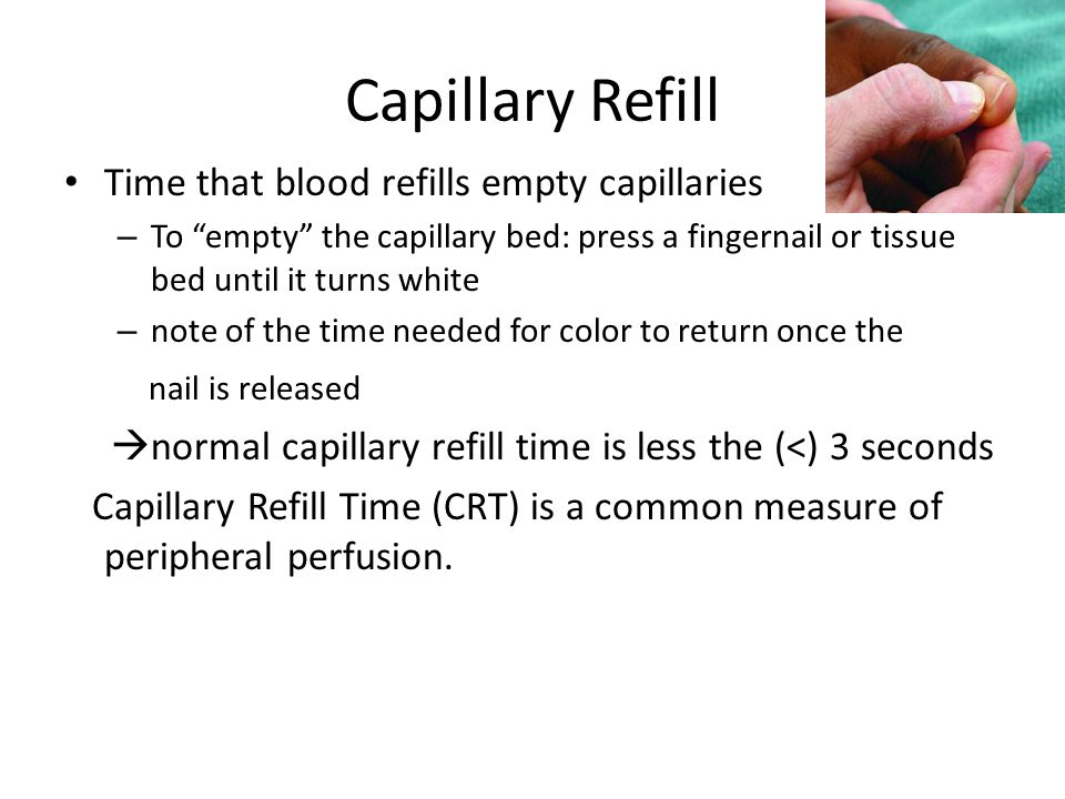 """Capillary Refill Time that blood refills empty capillaries – To """"empty"""" the capillary bed: press a fingernail or tissue bed until it turns white – not"""
