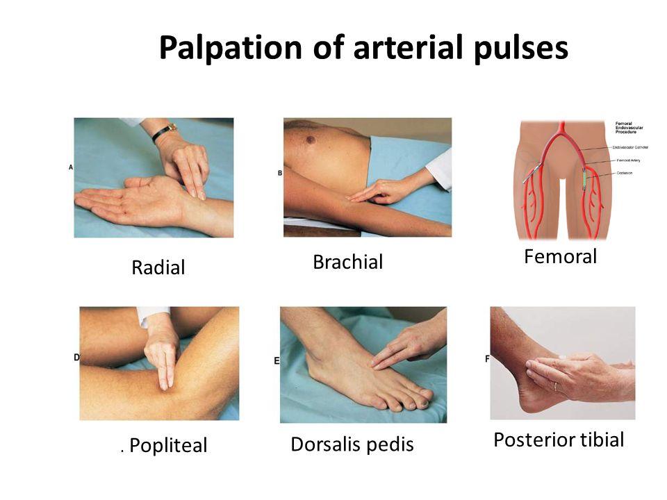 Palpation of arterial pulses. Popliteal Radial Brachial Femoral Dorsalis pedis Posterior tibial
