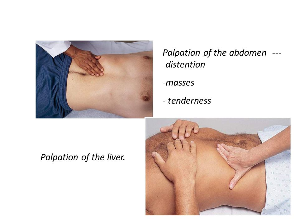 Palpation of the abdomen --- -distention -masses - tenderness Palpation of the liver.