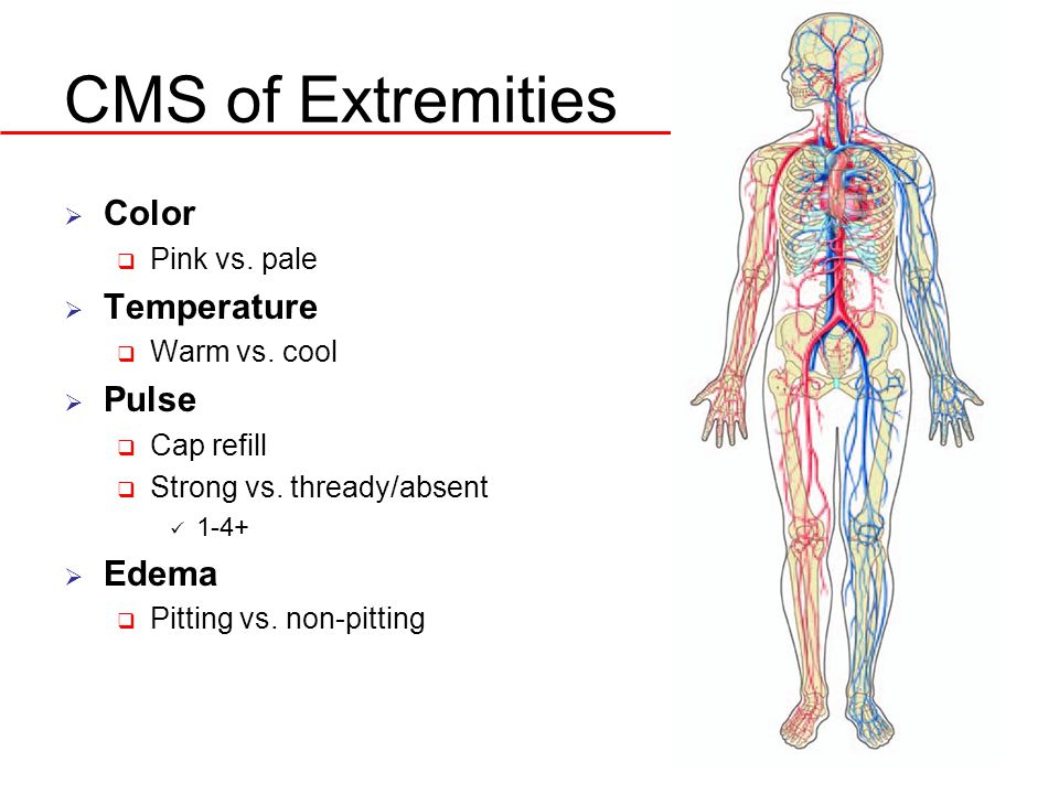 CMS of Extremities  Color  Pink vs. pale  Temperature  Warm vs.