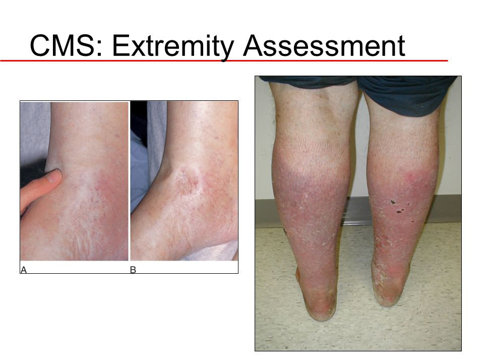 CMS: Extremity Assessment