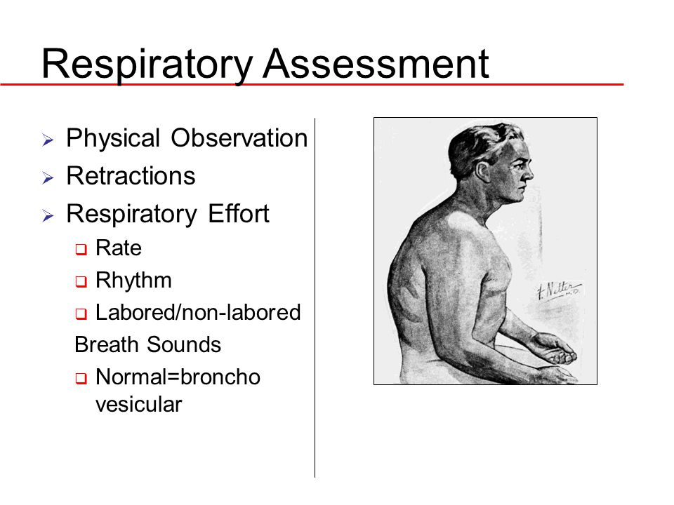 Respiratory Assessment  Physical Observation  Retractions  Respiratory Effort  Rate  Rhythm  Labored/non-labored Breath Sounds  Normal=broncho vesicular