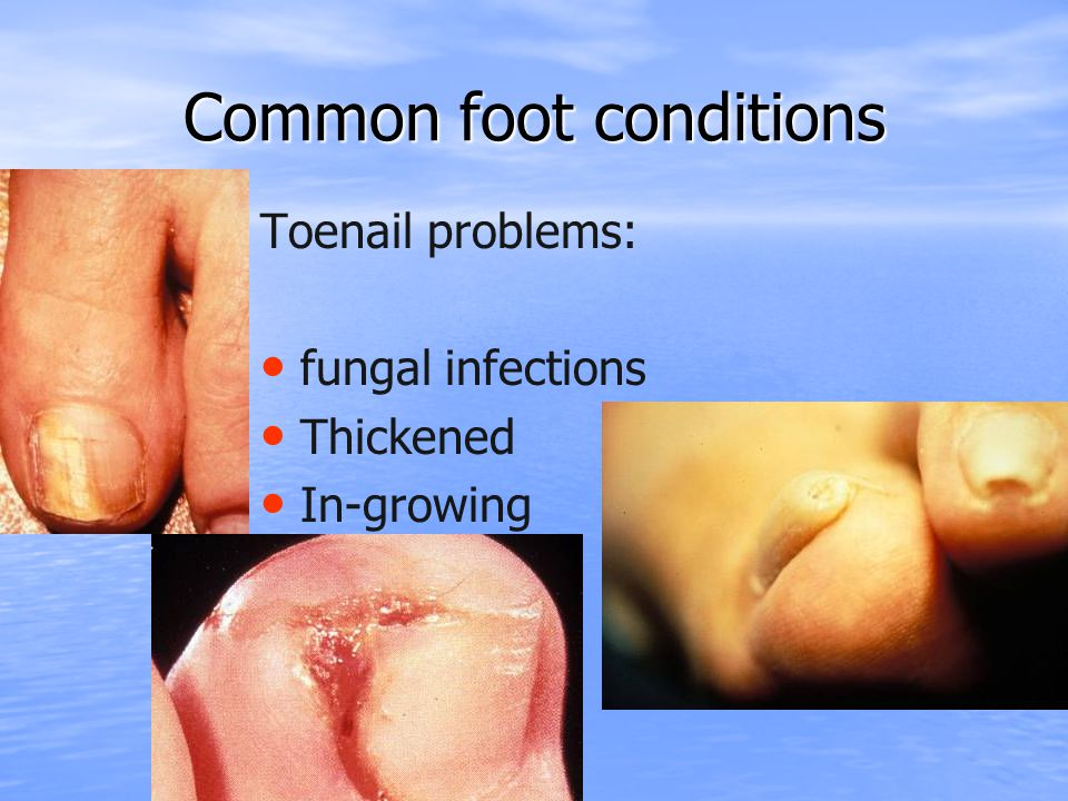 Common foot conditions Toenail problems: fungal infections Thickened In-growing