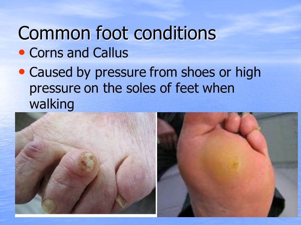 Common foot conditions Corns and Callus Caused by pressure from shoes or high pressure on the soles of feet when walking