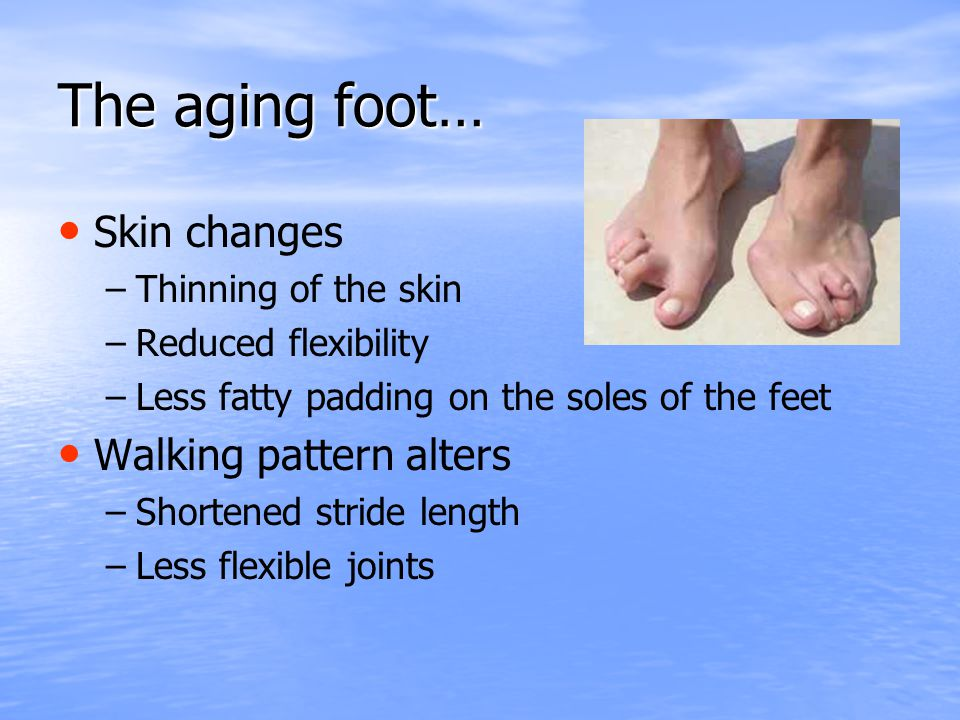 The aging foot… Skin changes – –Thinning of the skin – –Reduced flexibility – –Less fatty padding on the soles of the feet Walking pattern alters – –S
