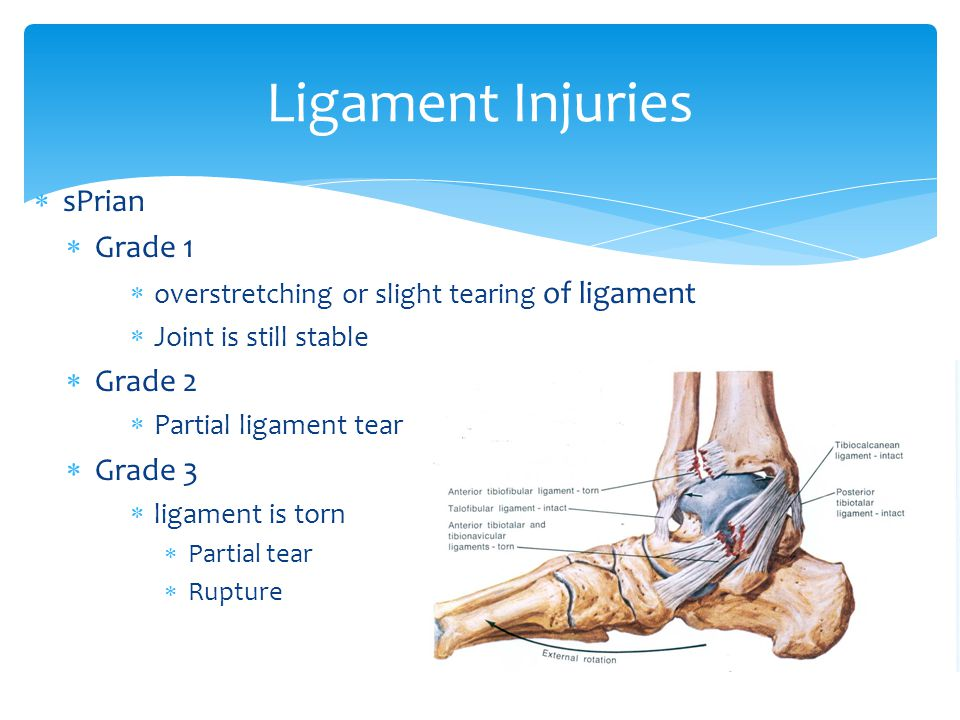  sPrian  Grade 1  overstretching or slight tearing of ligament  Joint is still stable  Grade 2  Partial ligament tear  Grade 3  ligament is torn  Partial tear  Rupture Ligament Injuries