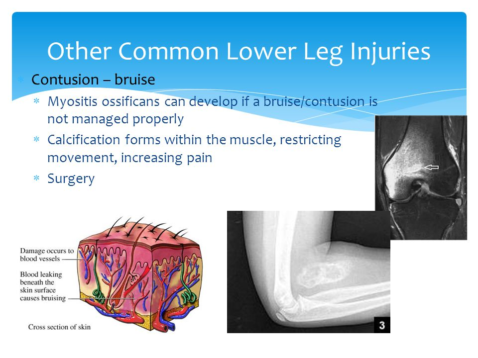  Contusion – bruise  Myositis ossificans can develop if a bruise/contusion is not managed properly  Calcification forms within the muscle, restricting movement, increasing pain  Surgery Other Common Lower Leg Injuries