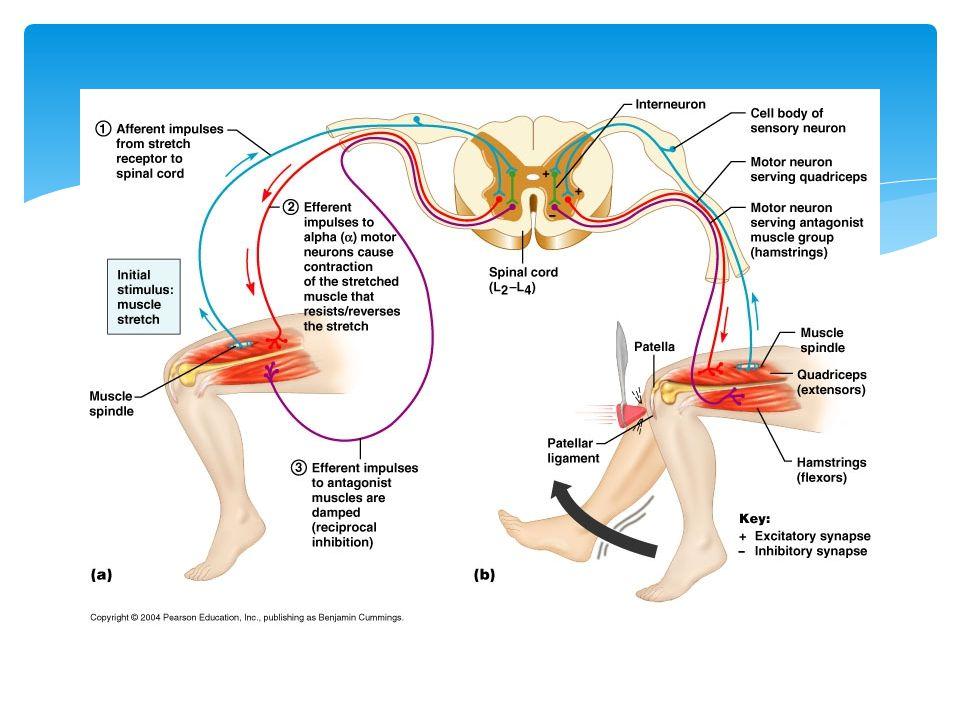  Achilles Tendonitis Shredded tendon