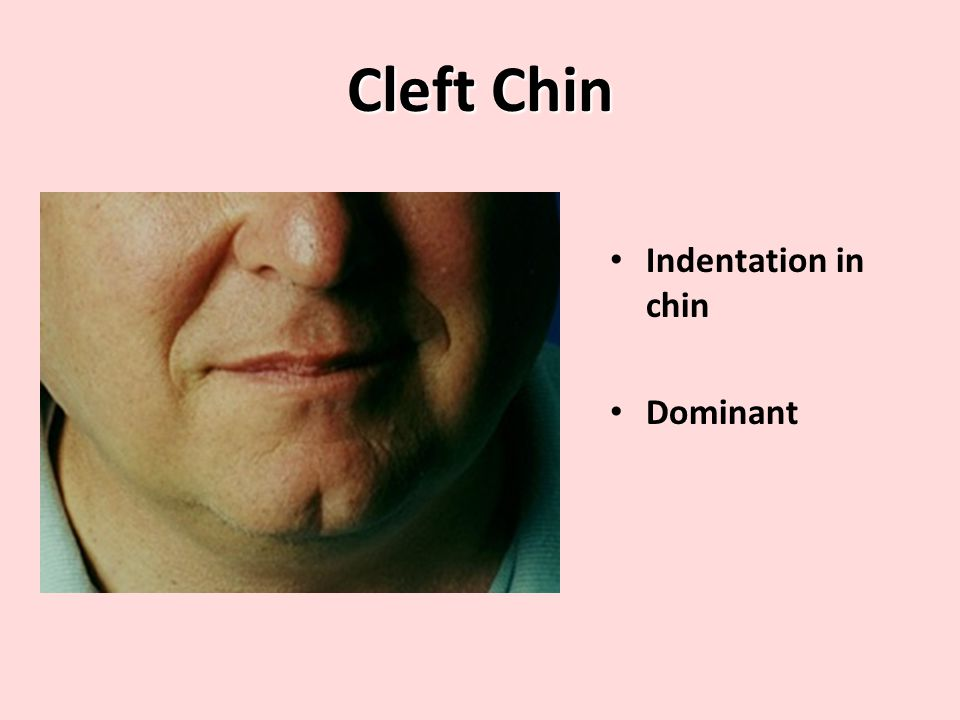Cleft Chin Indentation in chin Dominant