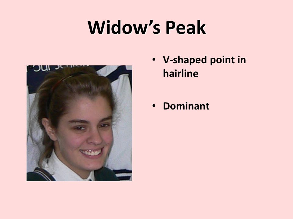 Widow's Peak V-shaped point in hairline Dominant