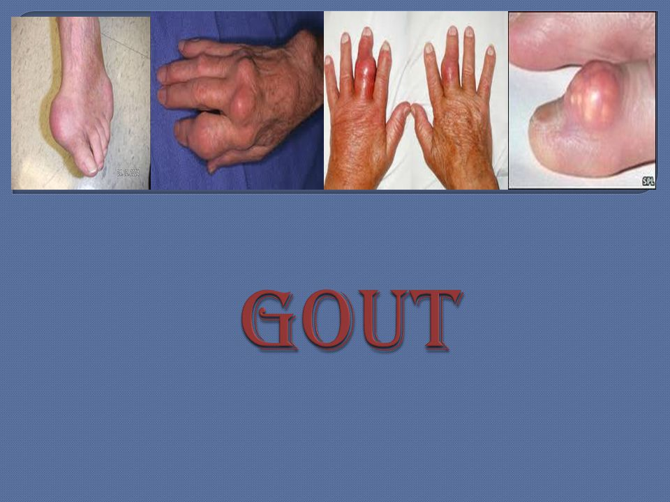 Uric acid is a chemical created when the body breaks down substances called purines.