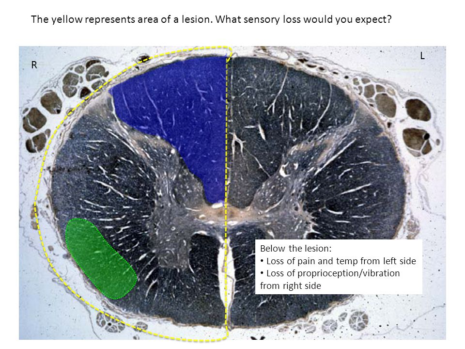 R L Below the lesion: Loss of pain and temp from left side Loss of proprioception/vibration from right side