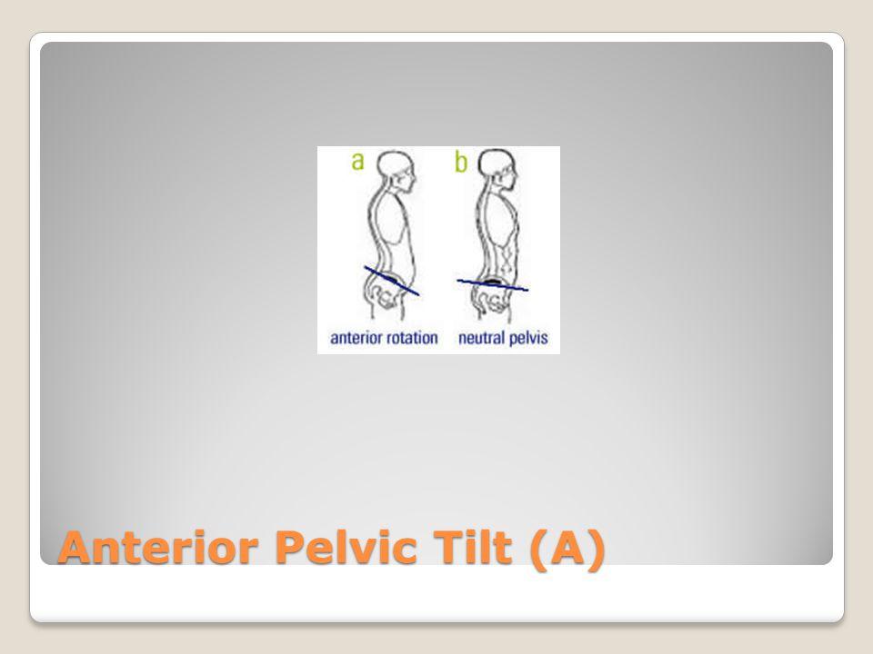 Anterior Pelvic Tilt (A)